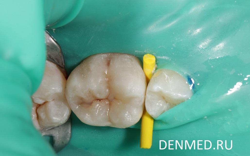 Cразу после установления композитной вкладки. Дырка в зубе залечена
