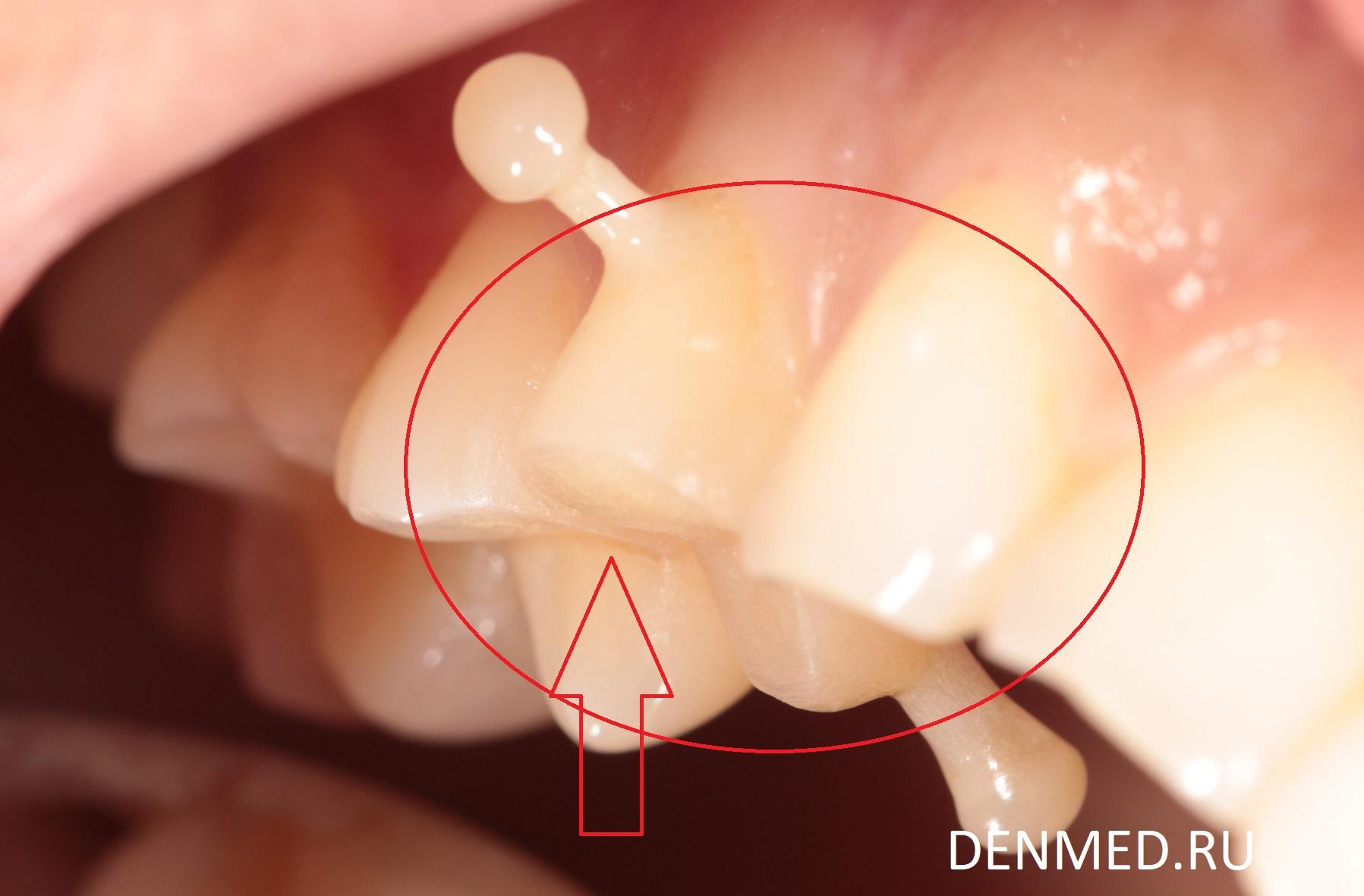 Этапы перемещения зуба, в промежуточных визитах в клинику ДенМед