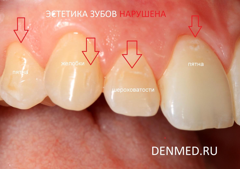 Изначальный вид зубов. На поверхности зубов определяются пятна, шероховатости, желобки