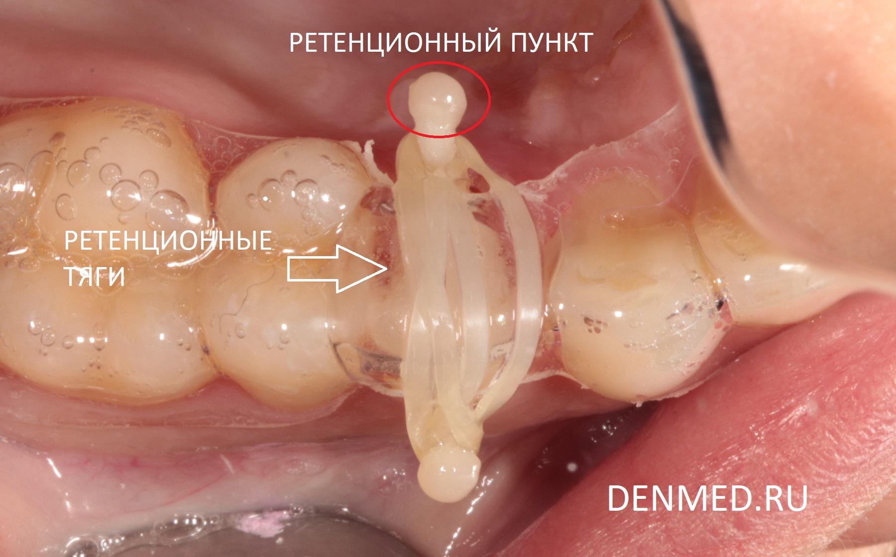 К ретенционным пунктам через каппу устанавливаются эластичные тяги