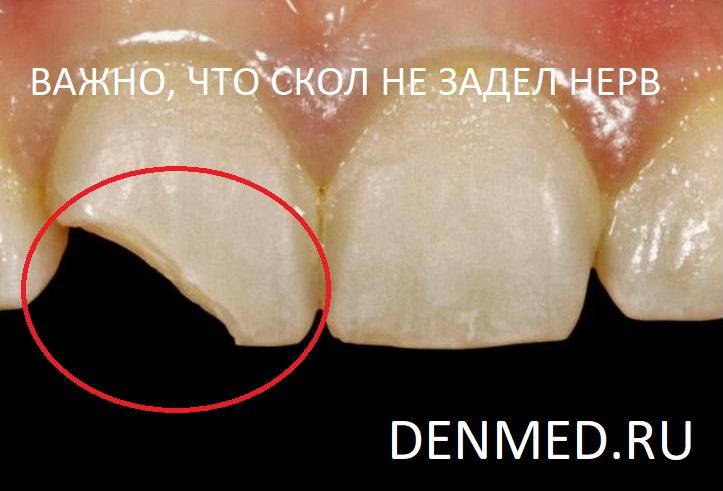 Как выглядел отколовшийся зуб. Важно что скол не затронул нерв
