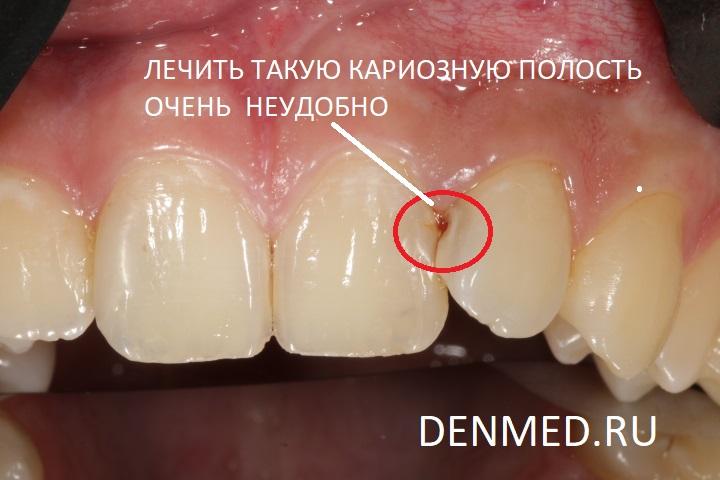 Лечить такую кариозную полость зуба крайне не удобно