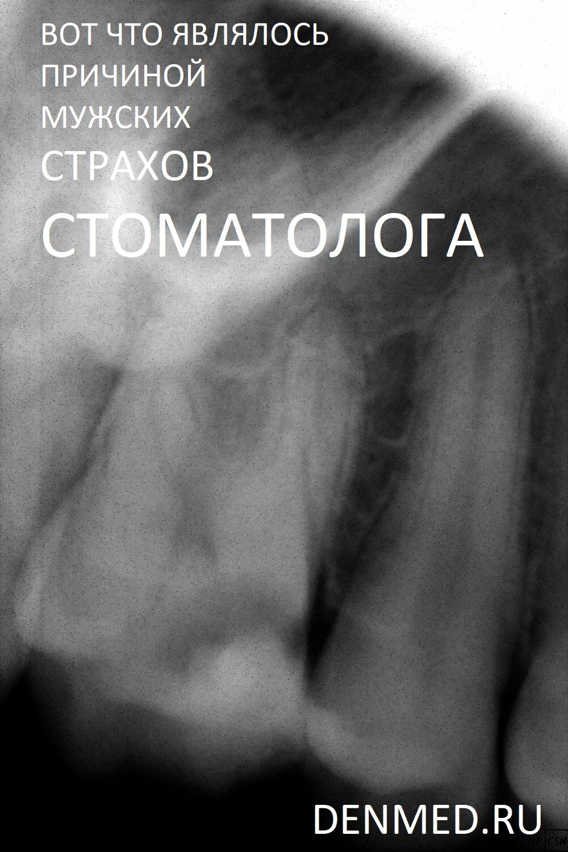На диагностическом снимке определяется глубокая кариозная полость на контактной поверхности, сообщающаяся с полостью зуба