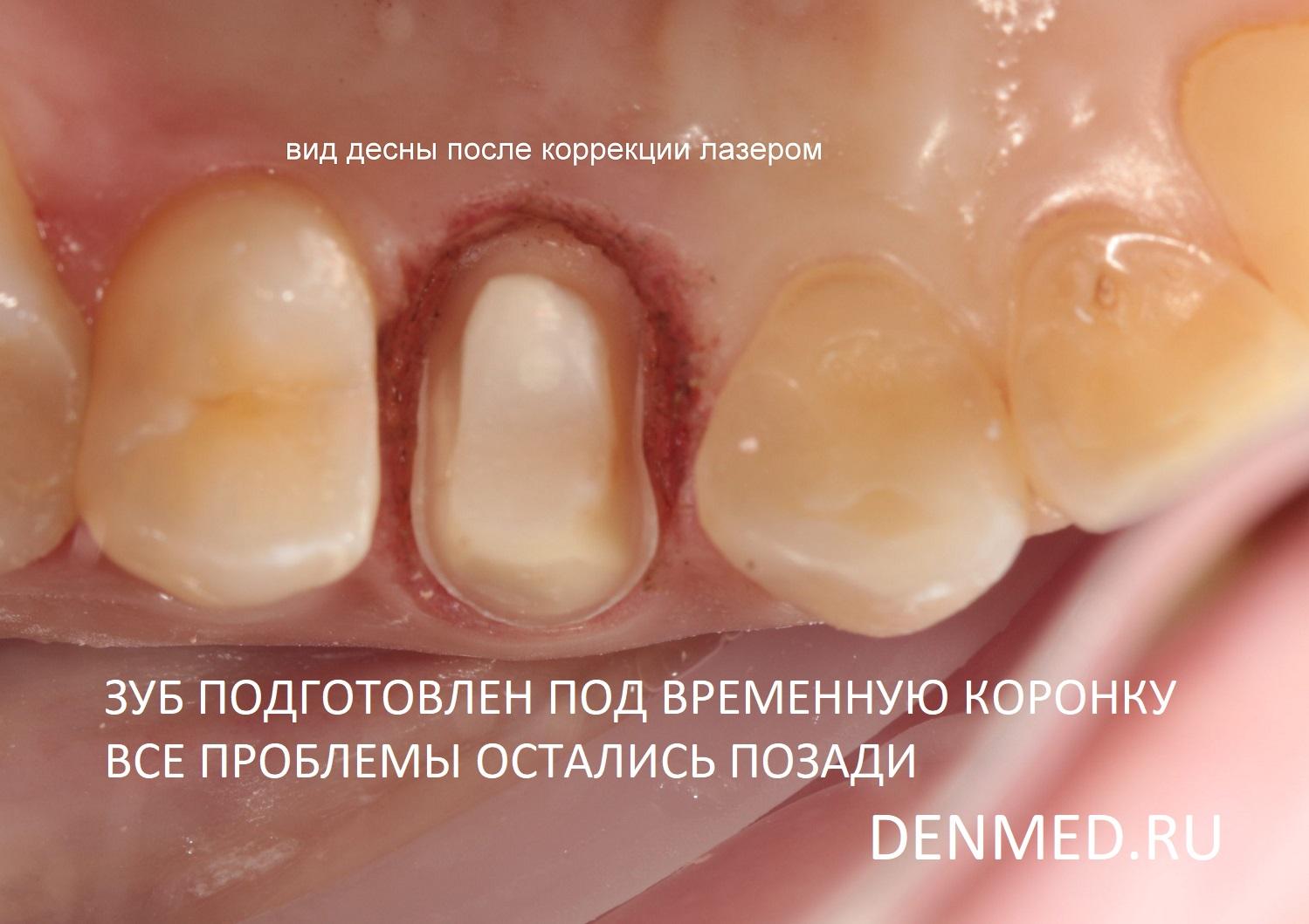 На этом этапе я отпрепарировала зуб под временную коронку