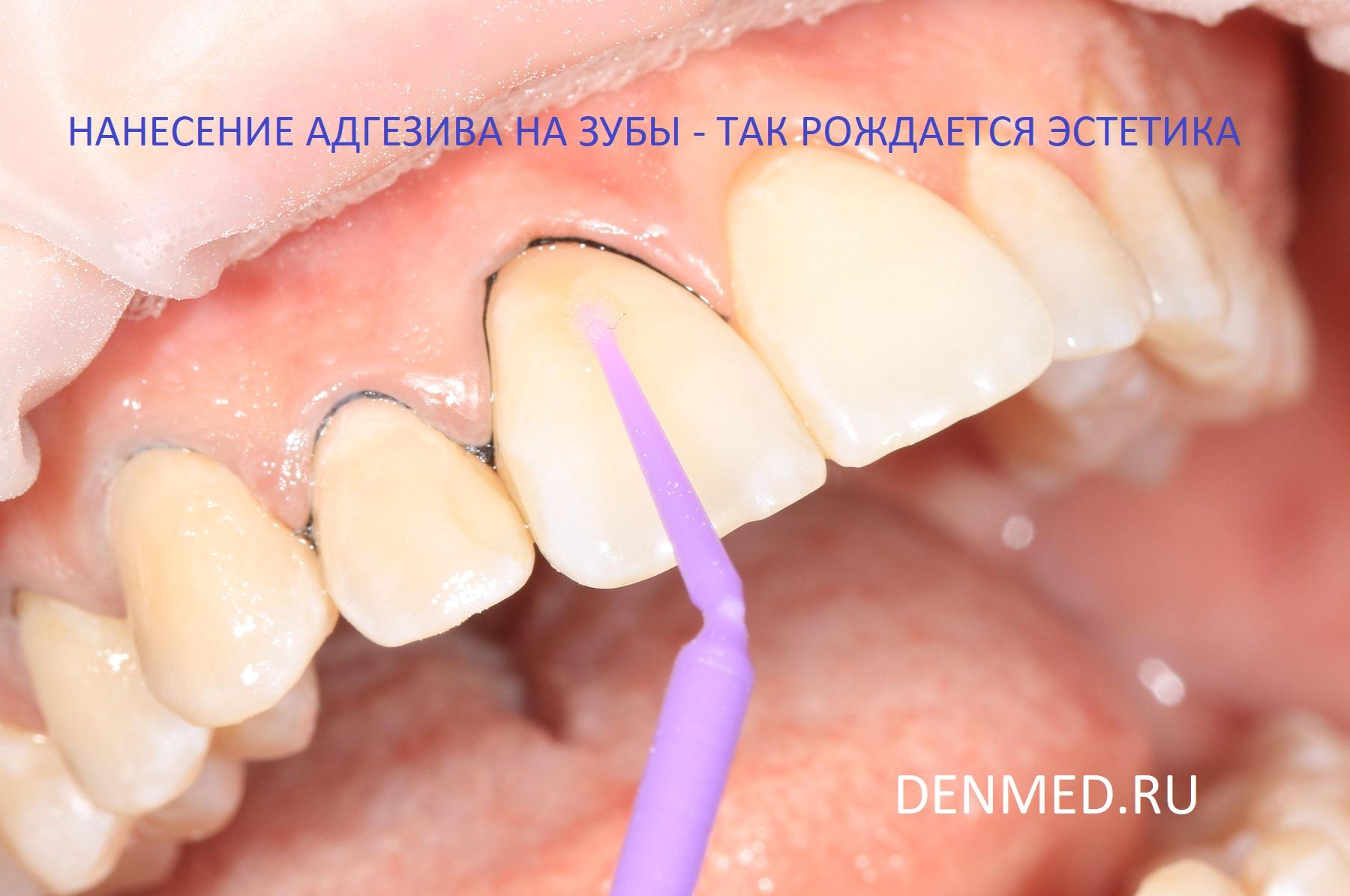 Нанесение адгезива на поверхность зубов
