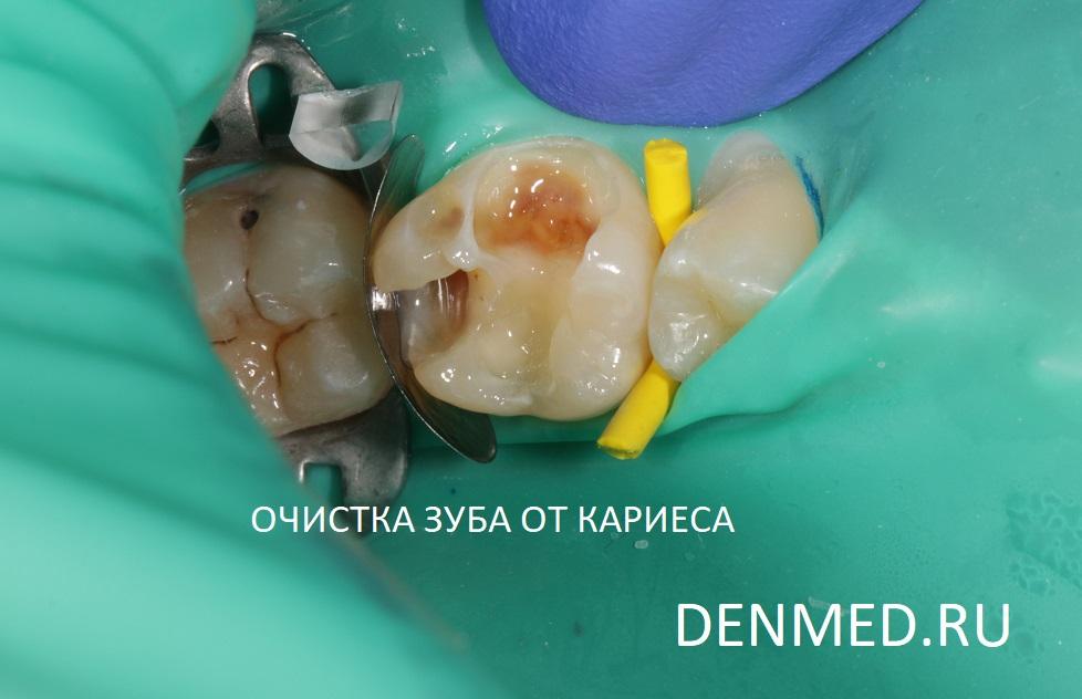 Обезболивание, изоляция рабочего поля, очистка зуба от кариеса. Собственно вот она - дырка в зубе пациента