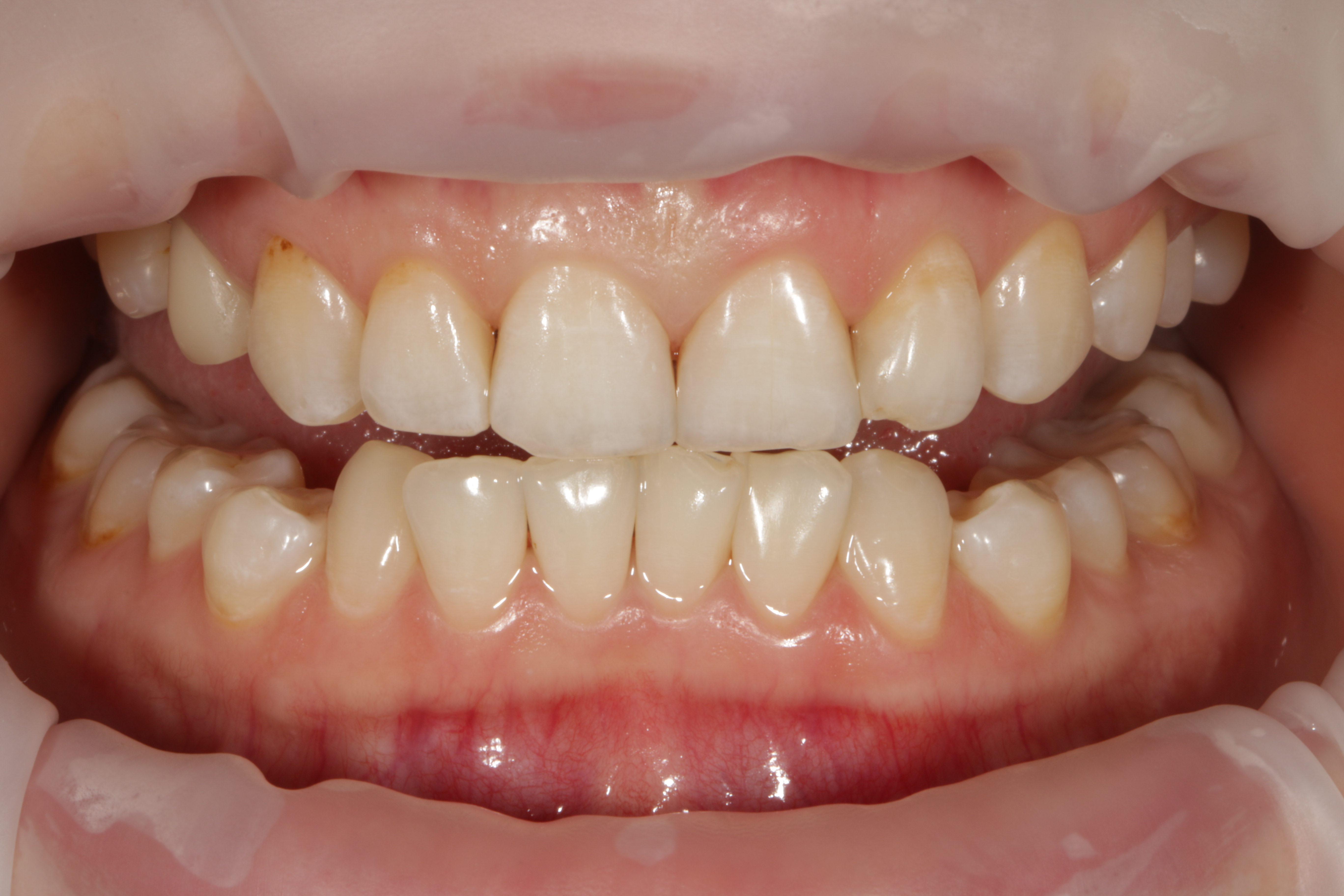 Отбеливание зубов - исходная ситуация с цветом зубов. Перед отбеливанием мы тщательно очищаем зубы от налета