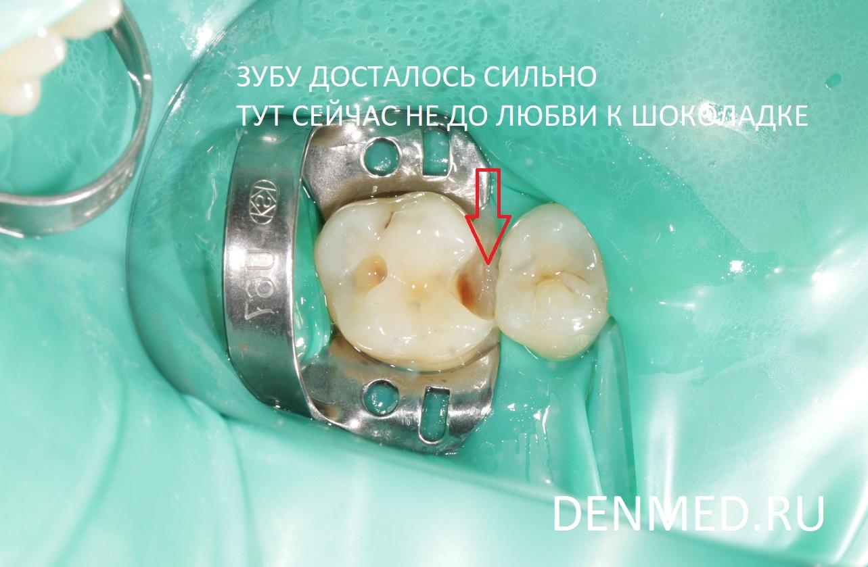 После аккуратного обезболивания, изоляции рабочего поля и обработки кариозных полостей можно видеть как досталось зубу