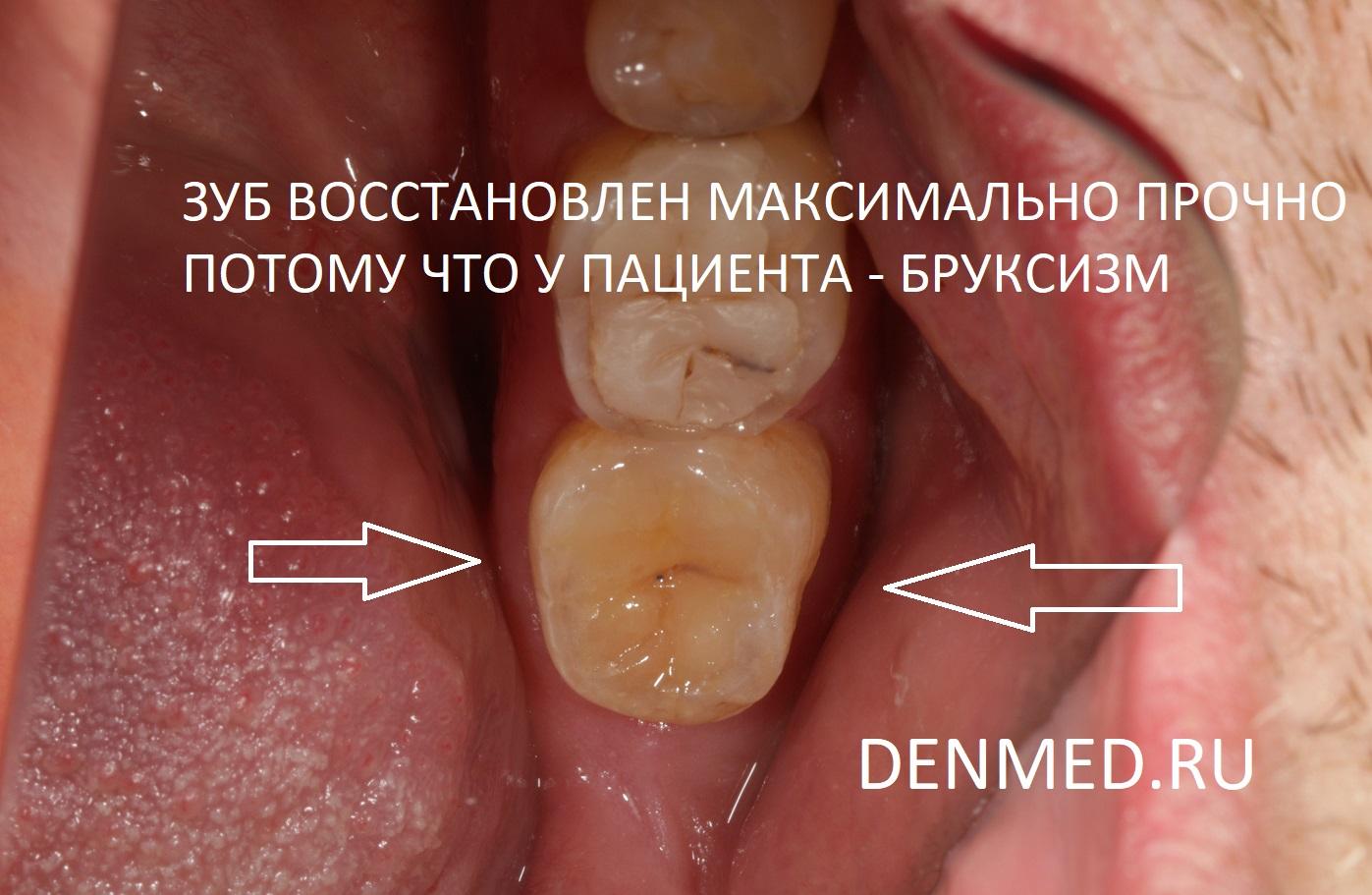 Реставрация зуба при бруксизме должна быть максимально прочна