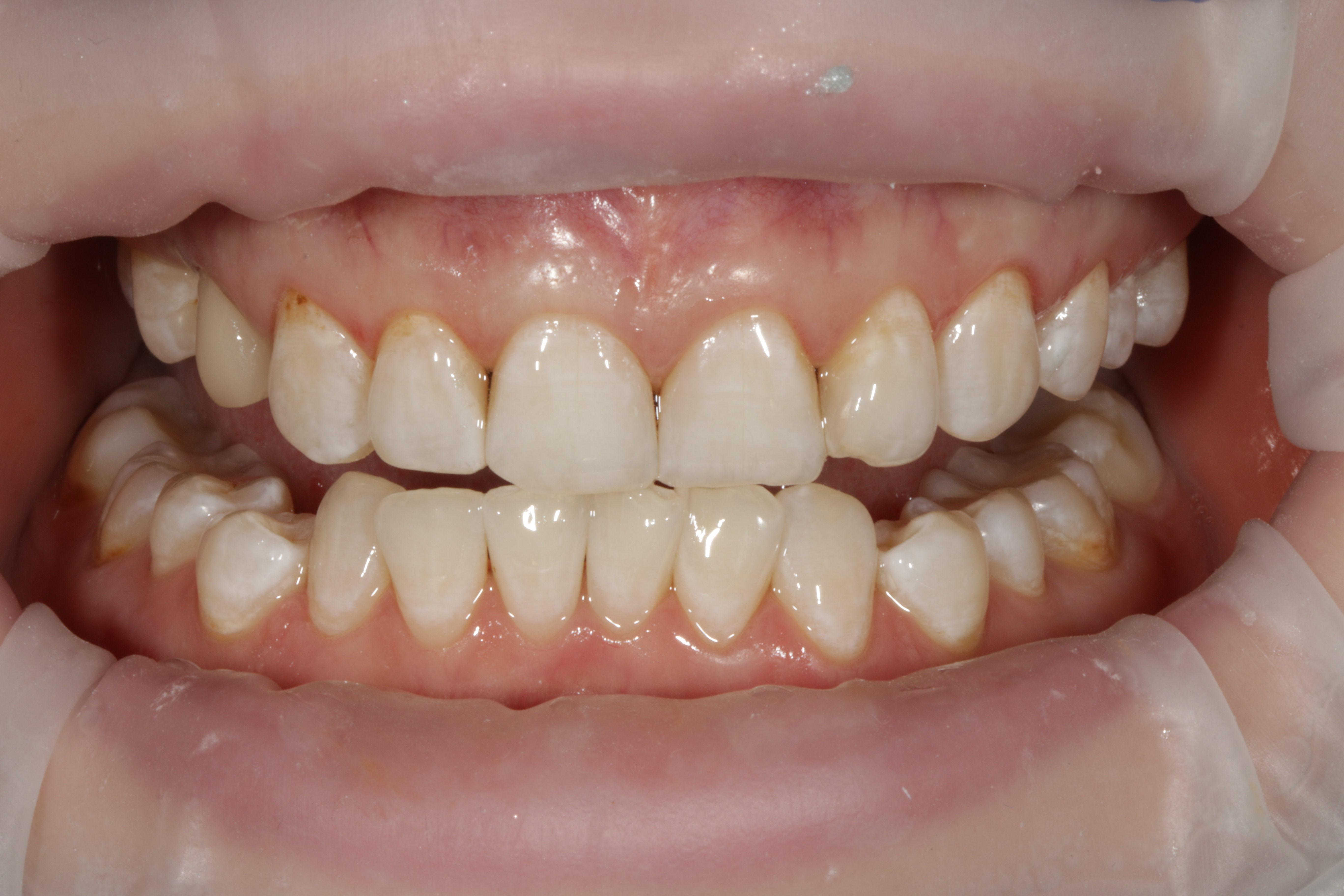 Само отбеливание зубов заняло около 40 минут в кресле и дало нам осветление на 5 тонов