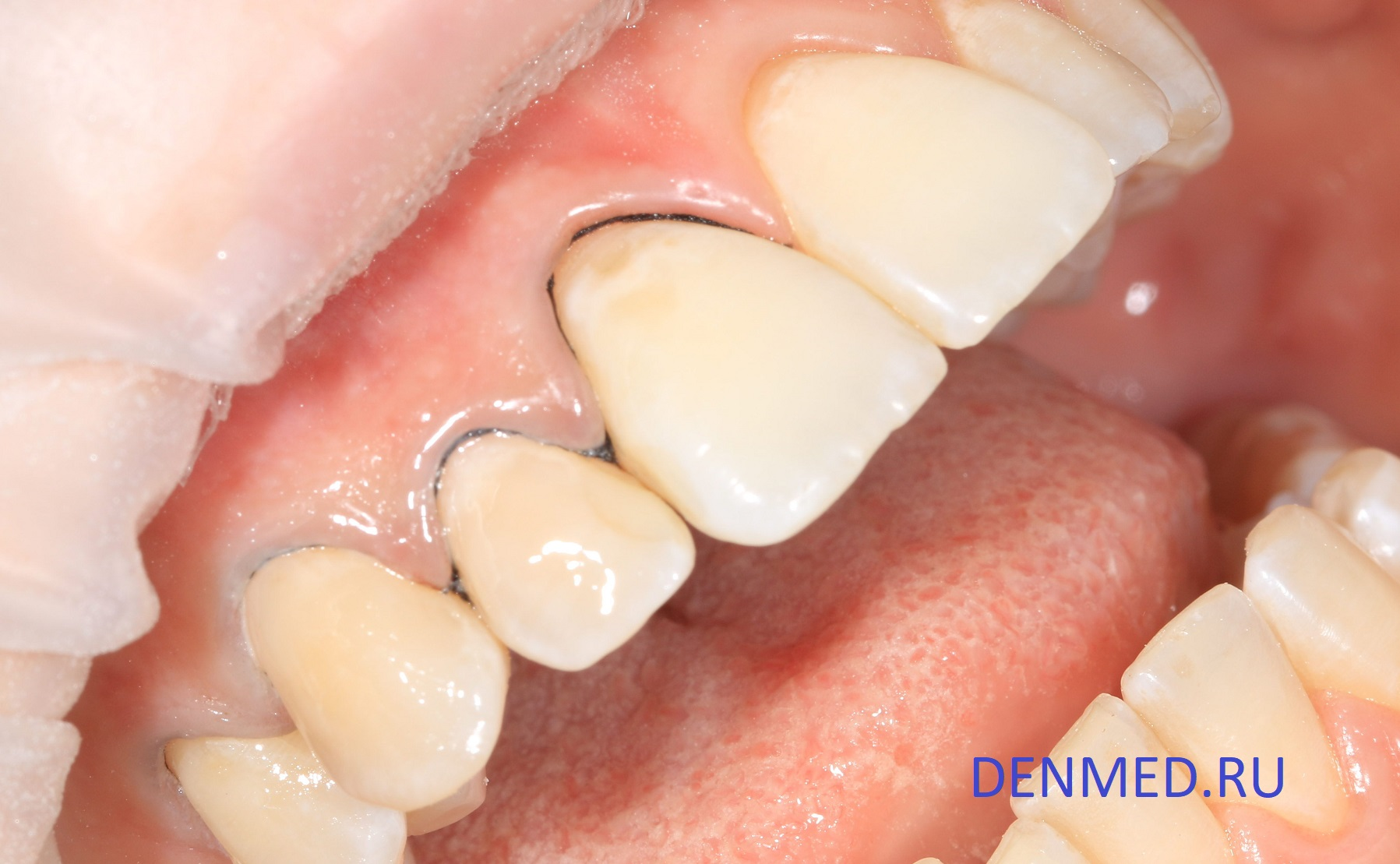 Вид обработанной пескоструем эмали. В зубодесневую борозду установлена ретракционная нить для изолции десны от поверхности зуба