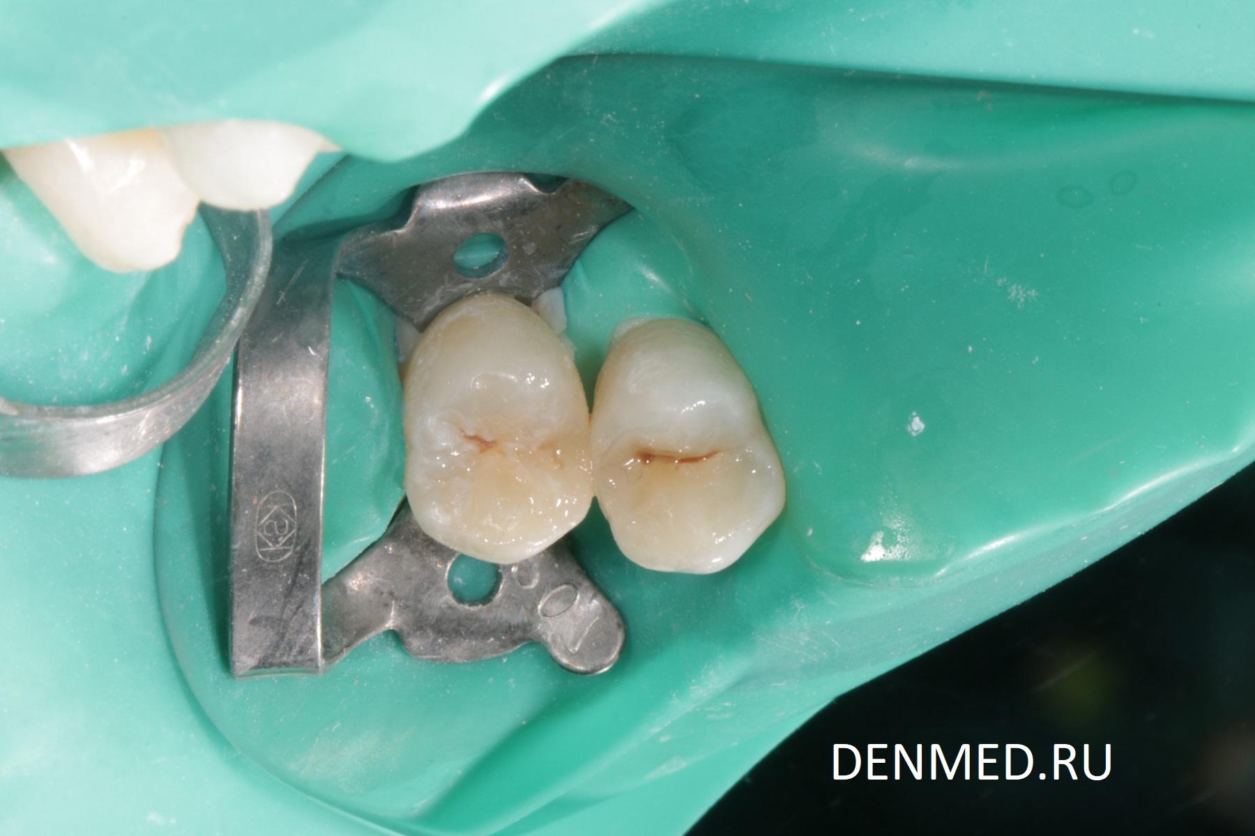 Вид зуба после первичной полировки пломбы