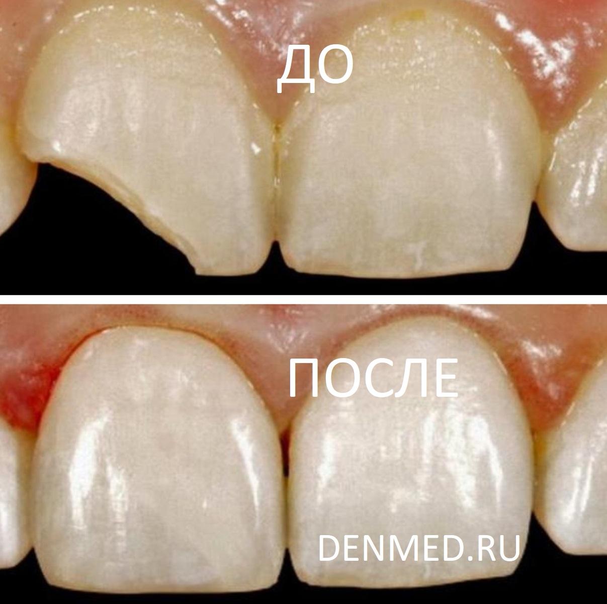 Восстановление скола переднего зуба у ребенка в клинике ДенМед