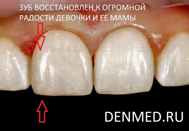 Восстановленный скол переднего зуба. Это оказаласьработа доктора, скульптора и художника