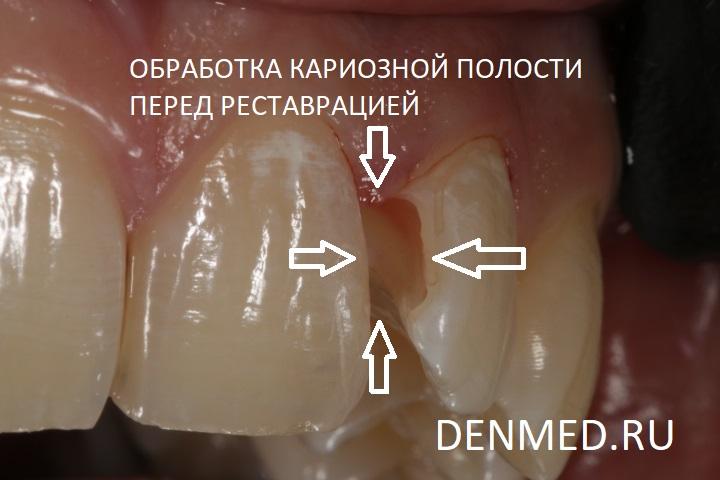 Обработка кариозной полости зуба перед реставрацией