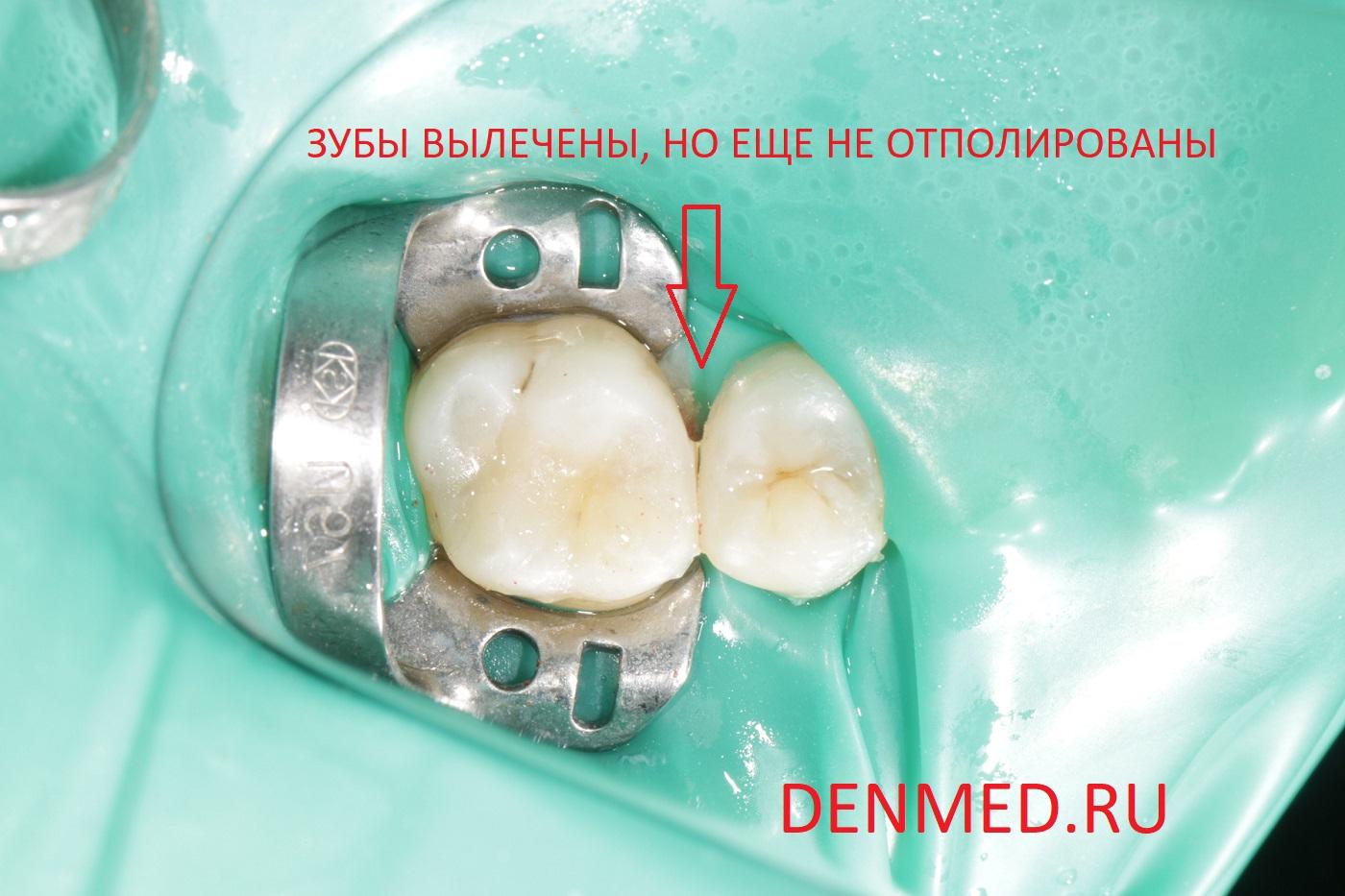Вот так выглядит только что выполненная реставрация двух зубов. Еще не отполирована и не введена в прикус