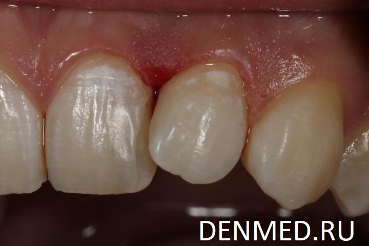 Вот так выглядит зуб, восстановленный после лечения кариозной полости