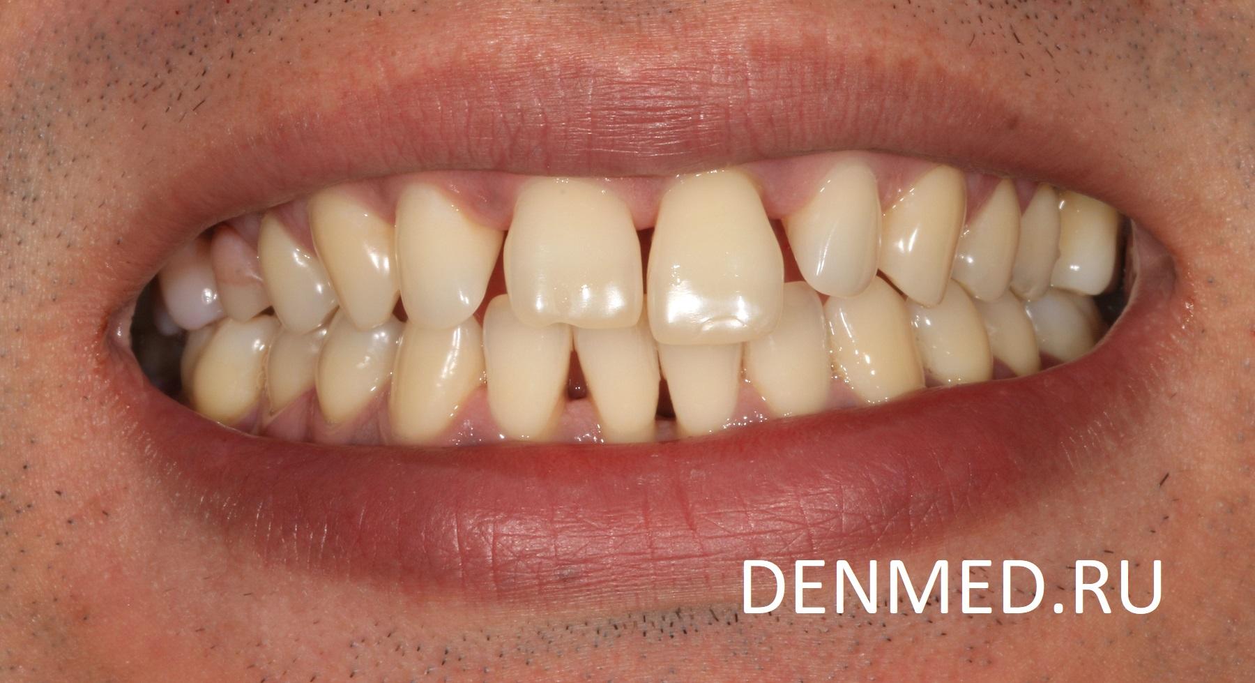 Из-за слабого пародонта, зубы плохо фиксированы в кости и имеют подвижность