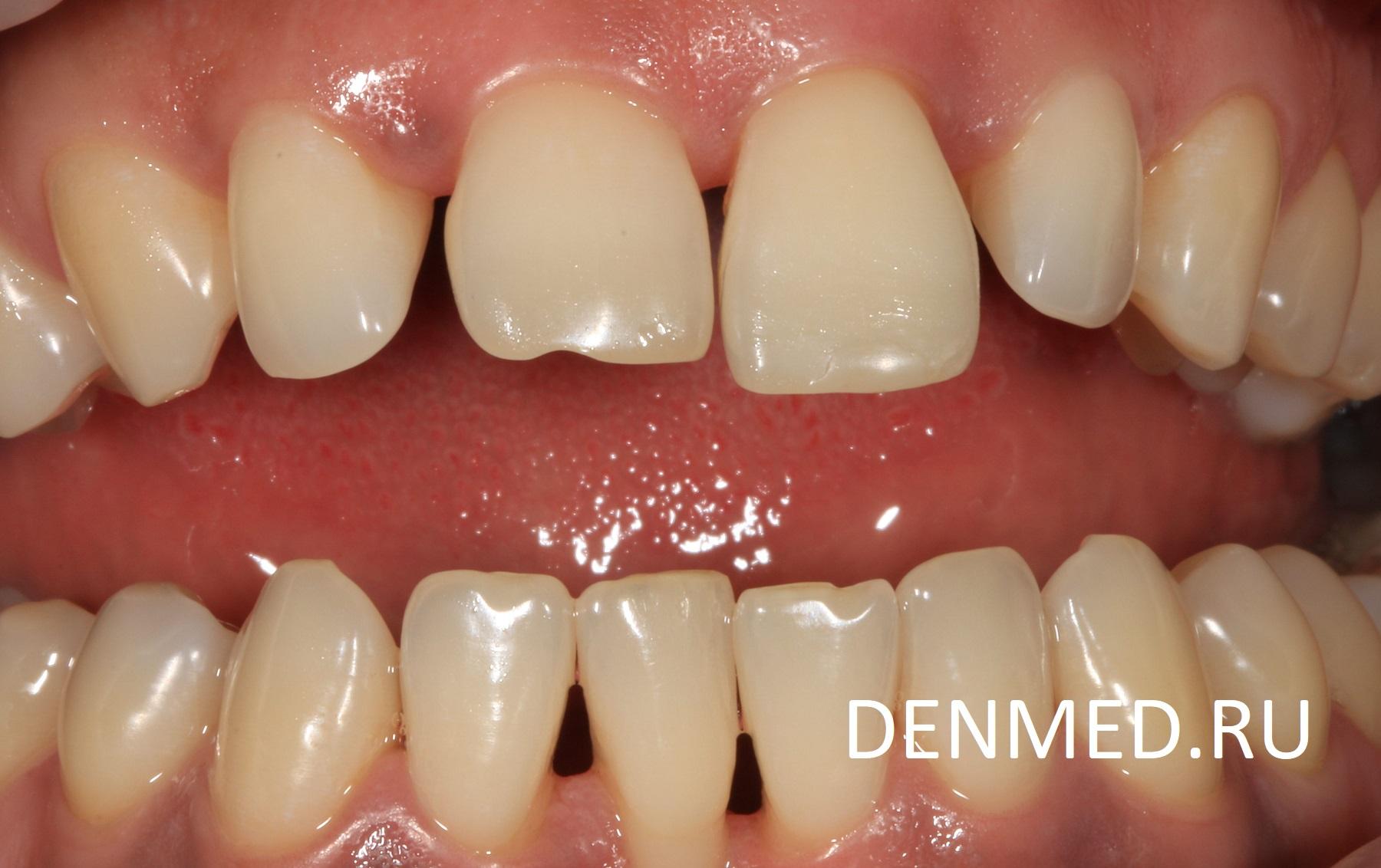 Пациент очень долго жил с таким положением зубов, со щелями между зубами