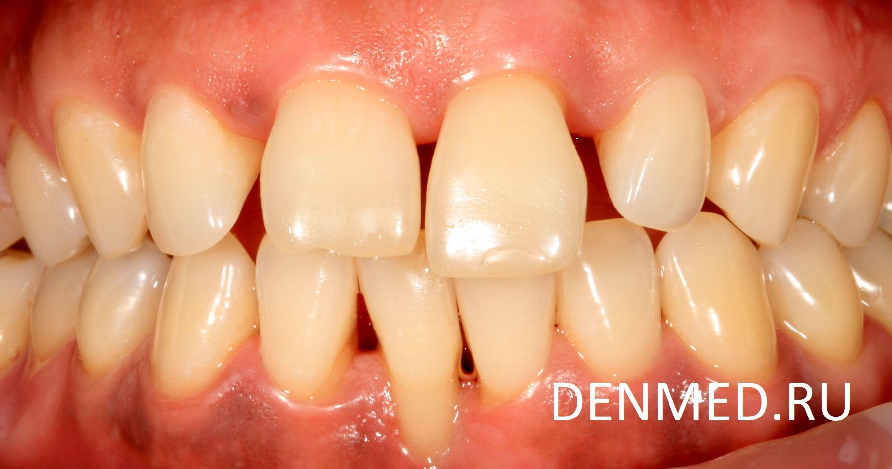 Я предложила ему несколько вариантов: изготовление керамических виниров или художественная реставрация зубов