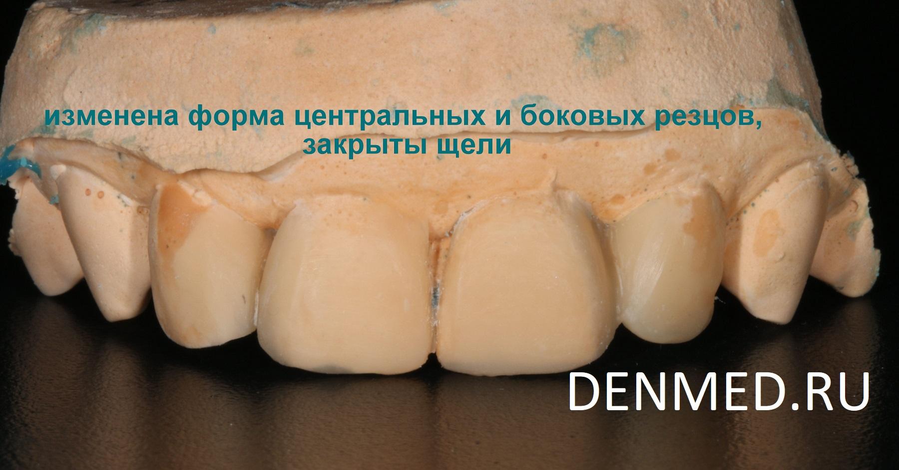 Для понимания того, как будут выглядеть зубы «после» я на подготовленной модели сконструировала новую форму зубов