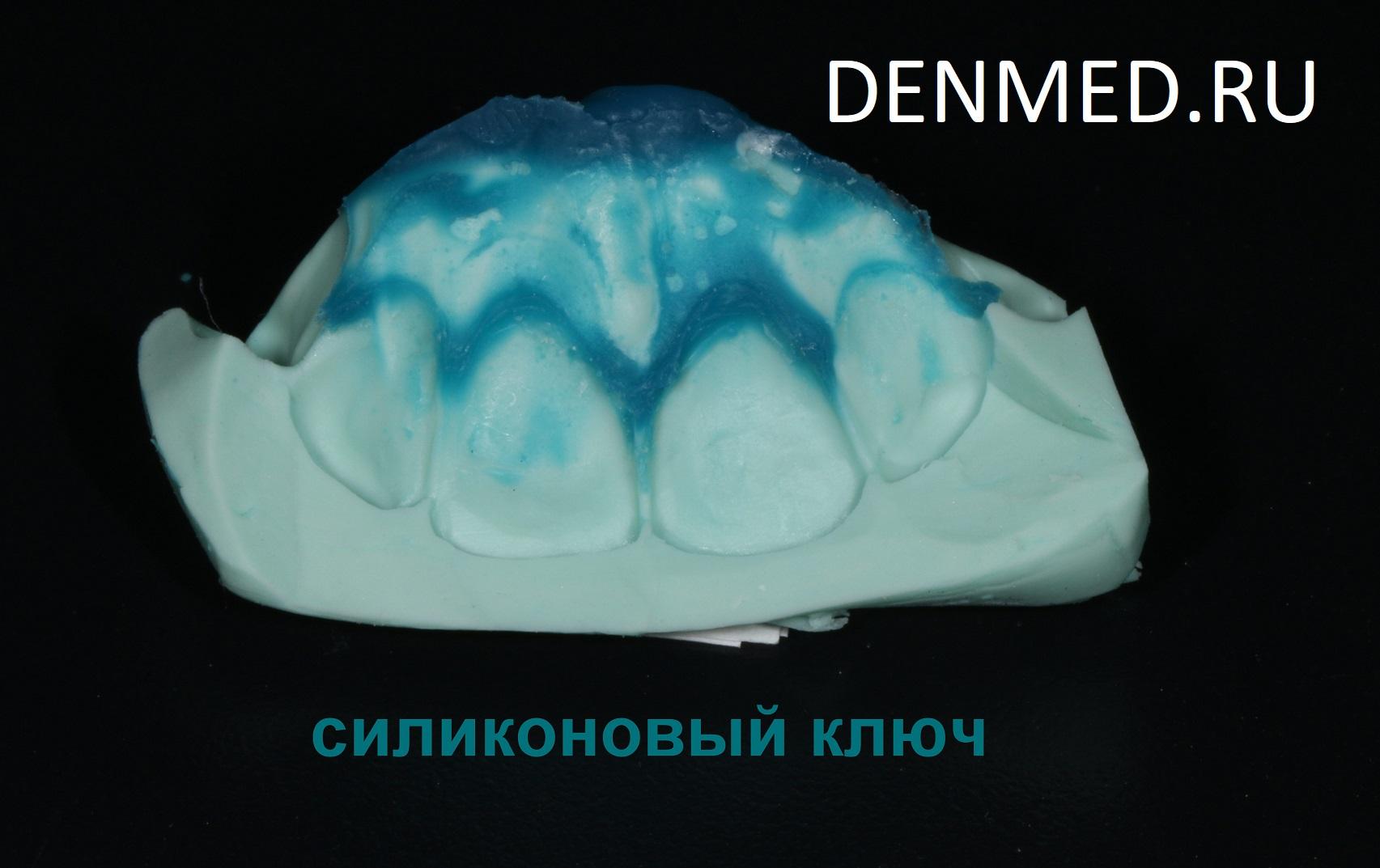 Изготовила силиконовый ключ, с помощью которого я перенесла наш проект с модели непосредственно на зубы