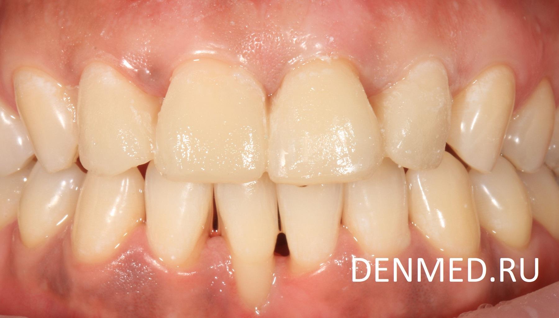 Эти изменения воссоздаются с помощью временной пластмассы, которую легко можно убрать с зубов