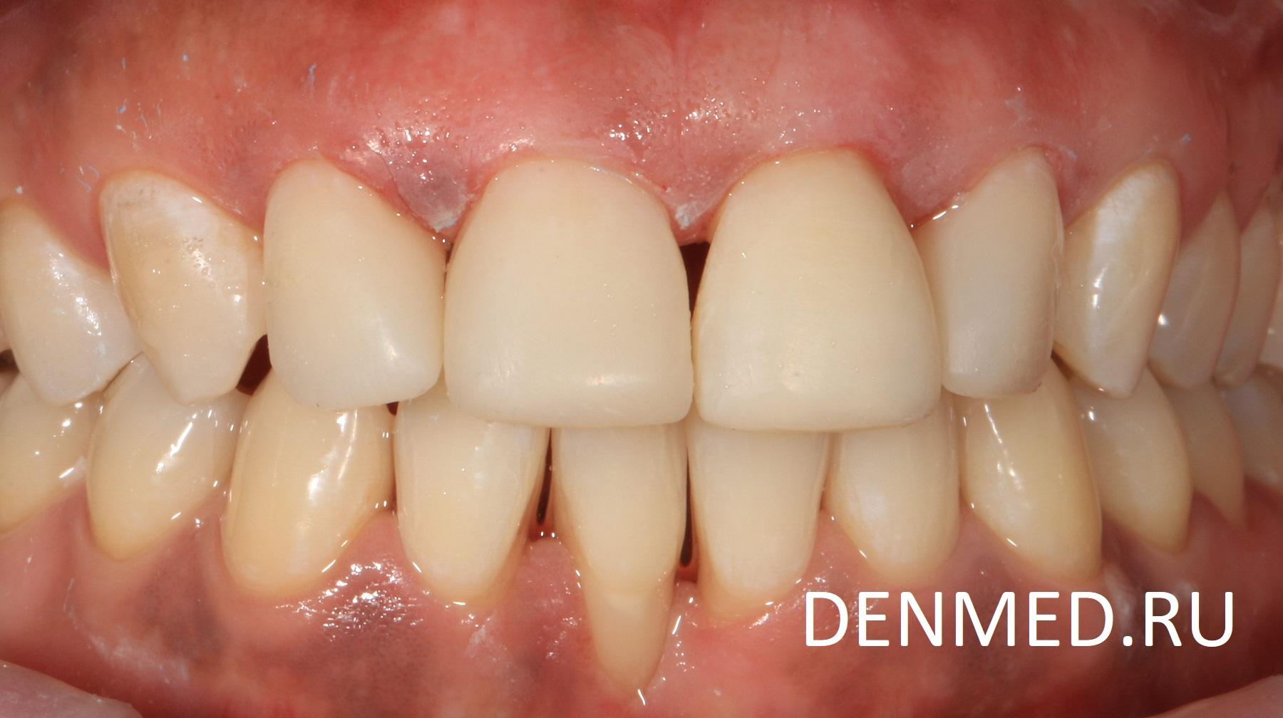 Закрытие щелей между зубами