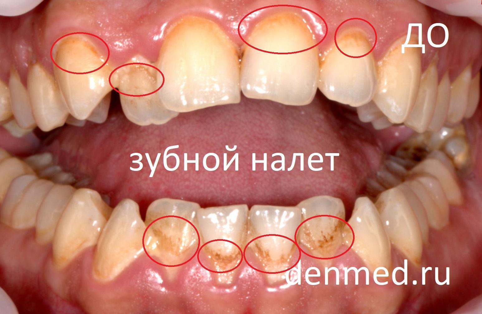 Здесь мы видим зубы пациента покрытые мягким, липким и пигментированным зубным налетом