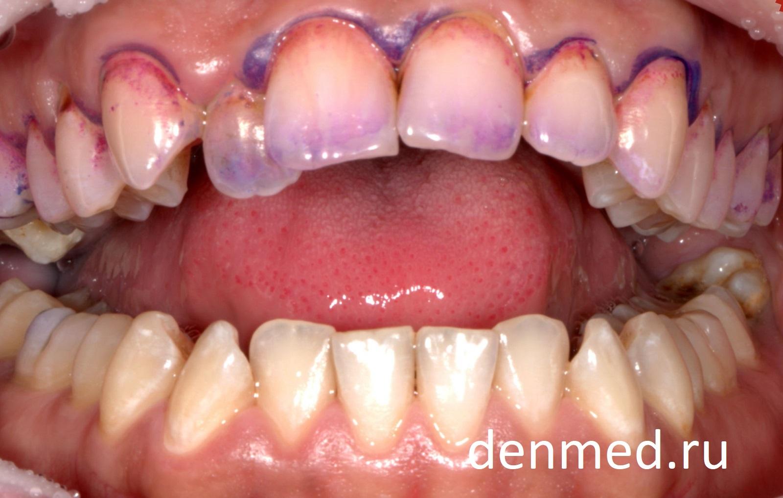 Первый этап - окрашивание мягкого и твердого зубного налета специальным красителем