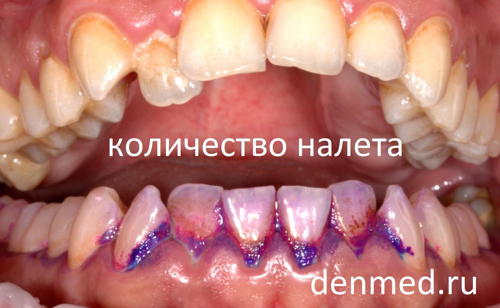 Вторая задача красителя - показать пациенту количество налета, накапливающегося на зубах