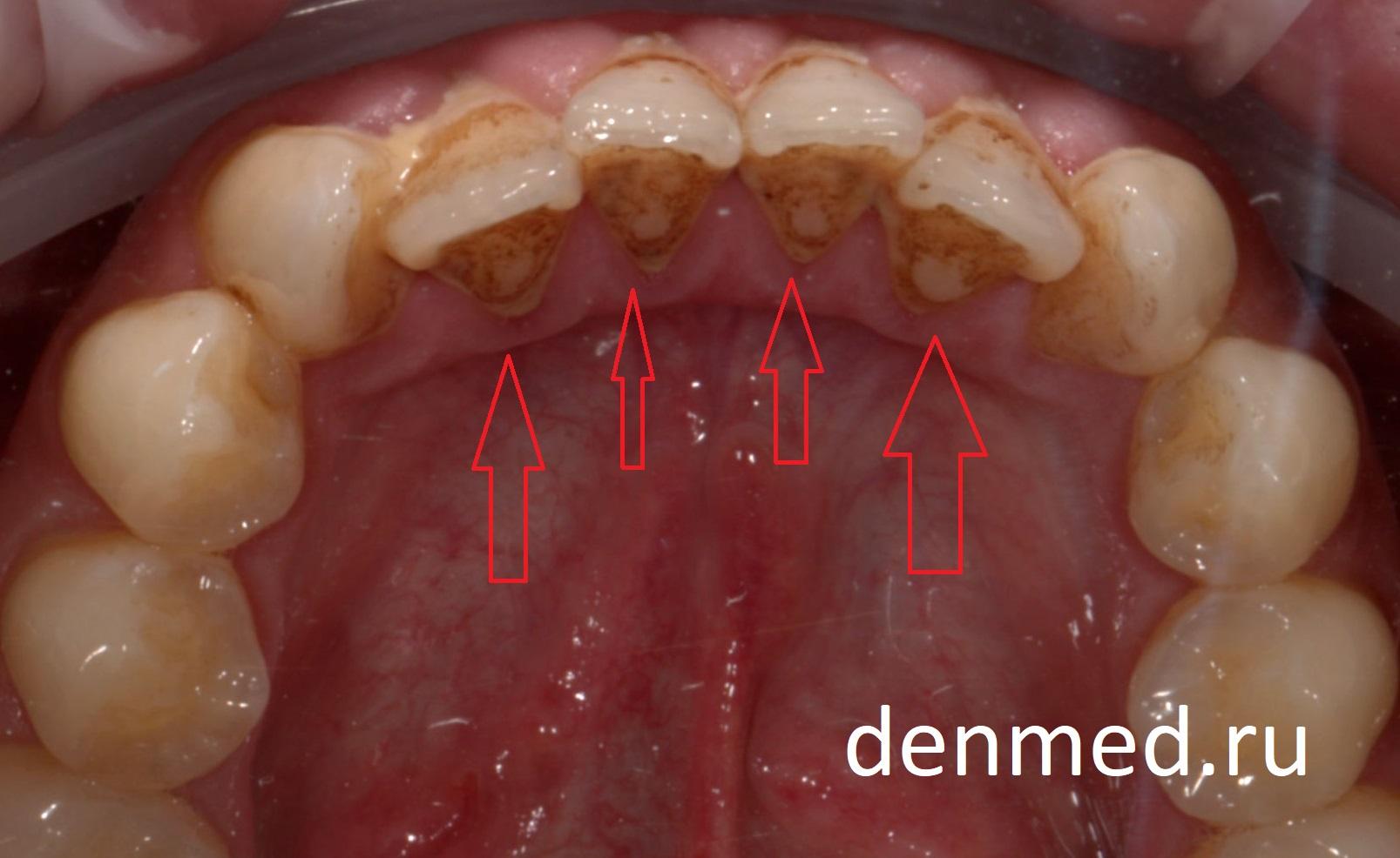 В основном зубной налет скапливается в местах, затрудненных для гигиены по причине скученности зубов
