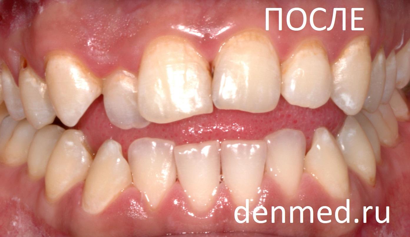 Зубы после очистки от зубного камня и налета